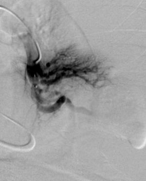 SwissIntervention - Zentrum fuer Mikrotherapie Lunge 2